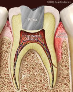 gum-abscess